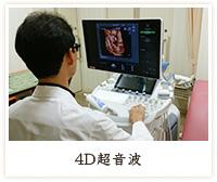 4D超音波